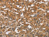 Immunohistochemistry of Human thyroid cancer using BLK Polyclonal Antibody at dilution of 1:20.