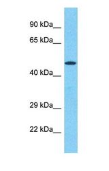 Western blot of BLK Antibody with human Jurkat Whole Cell lysate.  This image was taken for the unconjugated form of this product. Other forms have not been tested.