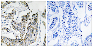 Immunohistochemistry analysis of paraffin-embedded human breast carcinoma, using BLK (Phospho-Tyr501) Antibody. The picture on the right is blocked with the phospho peptide.