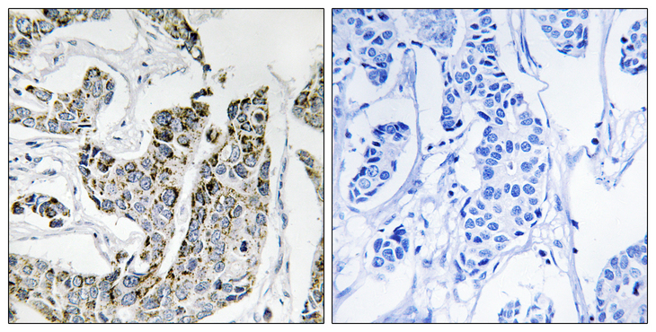 Immunohistochemistry of paraffin-embedded human breast carcinoma tissue using BLK (Phospho-Tyr501) antibody.