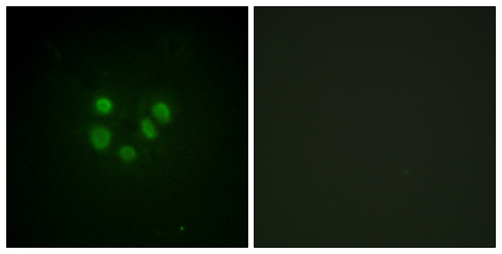 Immunofluorescence analysis of A549 cells, using Bloom Syndrome Antibody. The picture on the right is blocked with the synthesized peptide.