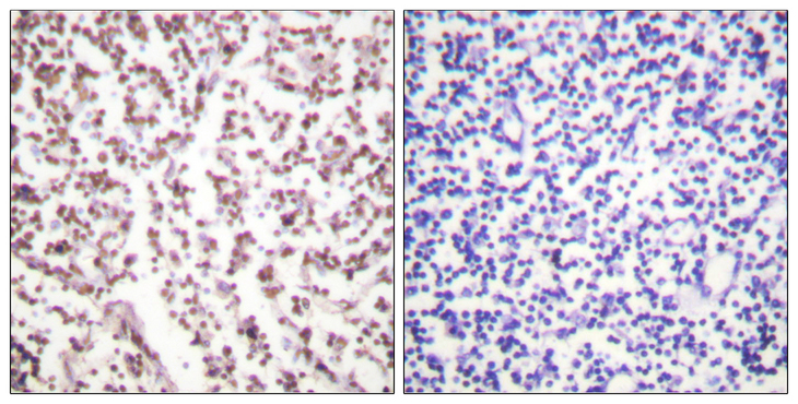 Immunohistochemistry analysis of paraffin-embedded human lymph node tissue, using Bloom Syndrome Antibody. The picture on the right is blocked with the synthesized peptide.
