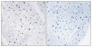 IHC of paraffin-embedded human heart, using Bloom Syndrome (Phospho-Thr99) Antibody. The sample on the right was incubated with synthetic peptide.