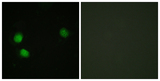 Immunofluorescence analysis of HeLa cells, using Bloom Syndrome (Phospho-Thr99) Antibody. The picture on the right is blocked with the phospho peptide.