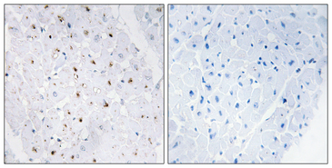 Immunohistochemistry analysis of paraffin-embedded human heart, using Bloom Syndrome (Phospho-Thr99) Antibody. The picture on the right is blocked with the phospho peptide.