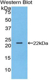 Western blot of recombinant BLMH.  This image was taken for the unconjugated form of this product. Other forms have not been tested.