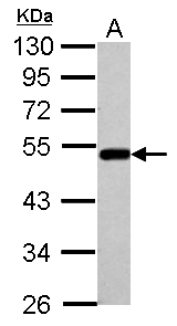 Sample (30 ug of whole cell lysate) A: A549 10% SDS PAGE BLMH antibody diluted at 1:1000