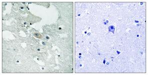 IHC of paraffin-embedded human brain, using BLNK (Phospho-Tyr84) Antibody. The sample on the right was incubated with synthetic peptide.
