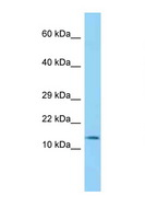 BLOC1S2 Antibody - BLOC1S2 antibody Western blot of Mouse Heart lysate. Antibody concentration 1 ug/ml.  This image was taken for the unconjugated form of this product. Other forms have not been tested.
