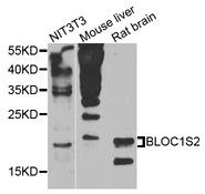BLOC1S2 Antibody - Western blot analysis of extracts of various cells.