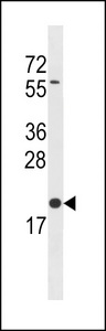 BLOC1S3 Antibody western blot of A2058 cell line lysates (35 ug/lane). The BLOC1S3 antibody detected the BLOC1S3 protein (arrow).