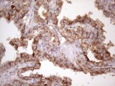 BMF Antibody - Immunohistochemical staining of paraffin-embedded Carcinoma of Human thyroid tissue using anti-BMF mouse monoclonal antibody. (Heat-induced epitope retrieval by 1 mM EDTA in 10mM Tris, pH8.5, 120C for 3min. (1:150)