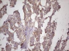 BMF Antibody - Immunohistochemical staining of paraffin-embedded Adenocarcinoma of Human endometrium tissue using anti-BMF mouse monoclonal antibody. (Heat-induced epitope retrieval by 1 mM EDTA in 10mM Tris, pH8.5, 120C for 3min. (1:150)