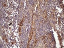 BMF Antibody - IHC of paraffin-embedded Carcinoma of Human lung tissue using anti-BMF mouse monoclonal antibody. (Heat-induced epitope retrieval by 1 mM EDTA in 10mM Tris, pH8.5, 120°C for 3min)(1:150).
