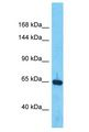 BMP1 / BMP-1 antibody Western Blot of ACHN. Antibody dilution: 1 ug/ml.  This image was taken for the unconjugated form of this product. Other forms have not been tested.