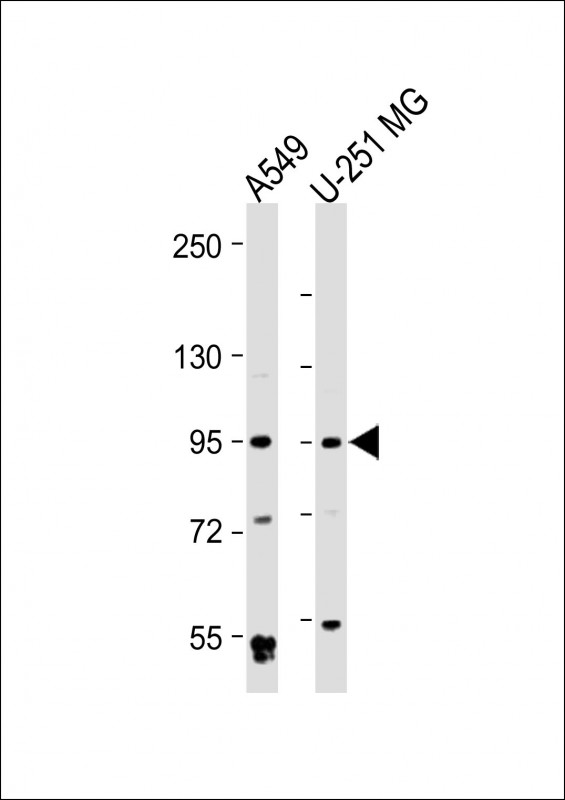 All lanes: Anti-BMP1 Antibody at 1:2000 dilution Lane 1: A549 whole cell lysate Lane 2: U-251 MG whole cell lysate Lysates/proteins at 20 µg per lane. Secondary Goat Anti-Rabbit IgG, (H+L), Peroxidase conjugated at 1/10000 dilution. Predicted band size: 111 kDa Blocking/Dilution buffer: 5% NFDM/TBST.