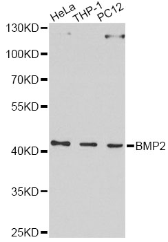 Western blot analysis of extracts of various cell lines, using BMP2 antibody at 1:1000 dilution. The secondary antibody used was an HRP Goat Anti-Rabbit IgG (H+L) at 1:10000 dilution. Lysates were loaded 25ug per lane and 3% nonfat dry milk in TBST was used for blocking. An ECL Kit was used for detection and the exposure time was 90s.