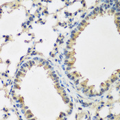 Immunohistochemistry of paraffin-embedded mouse lung using BMP2 antibodyat dilution of 1:200 (40x lens).