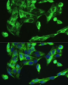 Immunofluorescence analysis of U2OS cells using BMP2 antibodyat dilution of 1:100. Blue: DAPI for nuclear staining.