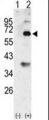 Western blot of Bmp3 (arrow) using rabbit polyclonal Bmp3 Antibody. 293 cell lysates (2 ug/lane) either nontransfected (Lane 1) or transiently transfected with the Bmp3 gene (Lane 2) (Origene Technologies).