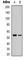 Western blot analysis of BMP3A expression in HEK293T (A); Jurkat (B) whole cell lysates.