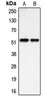 Western blot analysis of BMP3A expression in HEK293T (A); HUVEC (B) whole cell lysates.