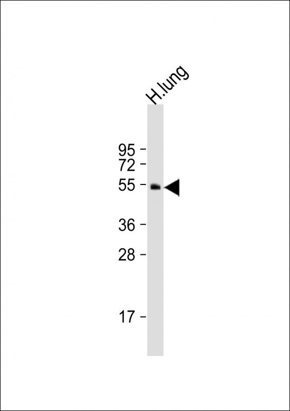 Anti-BMP4 Antibody at 1:2000 dilution + human lung lysate Lysates/proteins at 20 ug per lane. Secondary Goat Anti-Rabbit IgG, (H+L), Peroxidase conjugated at 1:10000 dilution. Predicted band size: 47 kDa. Blocking/Dilution buffer: 5% NFDM/TBST.