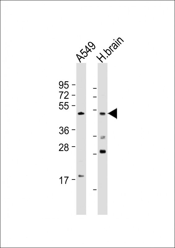 All lanes: Anti-BMP4 Antibody at 1:1000-1:2000 dilution. Lane 1: A549 whole cell lysate. Lane 2: human brain lysate Lysates/proteins at 20 ug per lane. Secondary Goat Anti-Rabbit IgG, (H+L), Peroxidase conjugated at 1:10000 dilution. Predicted band size: 47 kDa. Blocking/Dilution buffer: 5% NFDM/TBST.