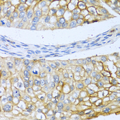 BMP4 Antibody - Immunohistochemistry of paraffin-embedded human prostate cancer using BMP4 antibody at dilution of 1:100 (40x lens).