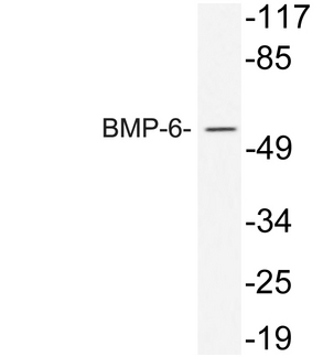 Western blot analysis of lysate from 293 cells treated with TNF, using BMP-6 antibody.