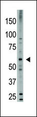 The anti-Bmp6 antibody is used in Western blot to detect Bmp6 in HL60 cell lysate.