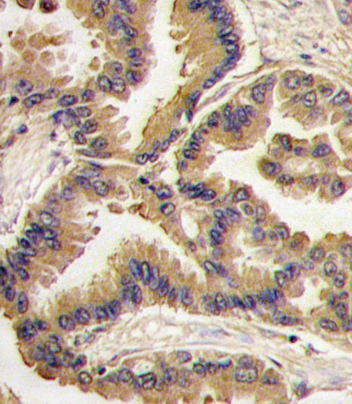 Formalin-fixed and paraffin-embedded human lung carcinoma tissue reacted with Bmp6 antibody , which was peroxidase-conjugated to the secondary antibody, followed by DAB staining. This data demonstrates the use of this antibody for immunohistochemistry; clinical relevance has not been evaluated.