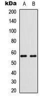 Western blot analysis of BMP6 expression in K562 (A); Saos2 (B) whole cell lysates.