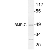 Western blot analysis of lysate from Jurkat cells, using BMP-7 antibody.