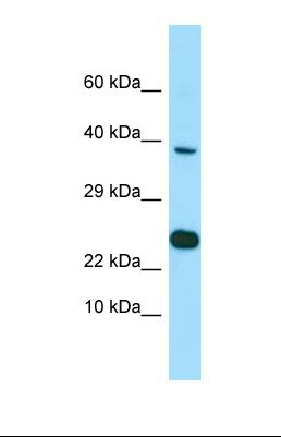 Western blot of NCI-H226. EBNA1BP2 antibody dilution 1.0 ug/ml.  This image was taken for the unconjugated form of this product. Other forms have not been tested.