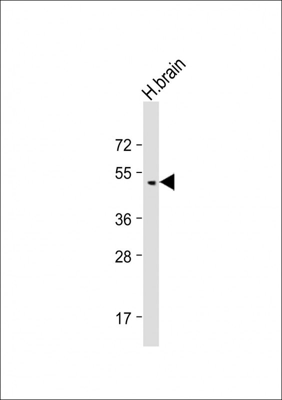 Anti-BMP8B Antibody (C-Term) at 1:2000 dilution + Human brain lysate Lysates/proteins at 20 µg per lane. Secondary Goat Anti-Rabbit IgG, (H+L), Peroxidase conjugated at 1/10000 dilution. Predicted band size: 45 kDa Blocking/Dilution buffer: 5% NFDM/TBST.