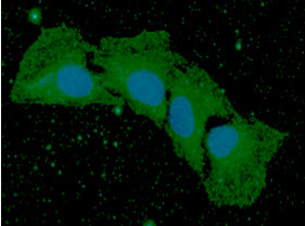 ICC/IF analysis of BMP8b in HaLe cells. The cell was stained with BMP8b antibody (1:100).The secondary antibody (green) was used Alexa Fluor 488. DAPI was stained the cell nucleus (blue).