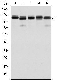 Western blot using BMPR2 mouse monoclonal antibody against HeLa (1), A431 (2), NIH/3T3 (3), Cos7 (4) and PC-12 (5) cell lysate.