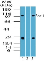 BNC1 / Basonuclin Antibody - Western blot of Bnc 1 in human spleen lysate in the 1) absence and 2) presence of immunizing peptide, and3) rat lysate using Polyclonal Antibody to Bnc 1 at 7 ug/ml and 4 ug/ml, respectively.