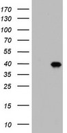 BOULE / BOLL Antibody - HEK293T cells were transfected with the pCMV6-ENTRY control. (Left lane) or pCMV6-ENTRY BOLL. (Right lane) cDNA for 48 hrs and lysed. Equivalent amounts of cell lysates. (5 ug per lane) were separated by SDS-PAGE and immunoblotted with anti-BOLL.