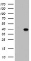 HEK293T cells were transfected with the pCMV6-ENTRY control (Left lane) or pCMV6-ENTRY BOLL (Right lane) cDNA for 48 hrs and lysed. Equivalent amounts of cell lysates (5 ug per lane) were separated by SDS-PAGE and immunoblotted with anti-BOLL.