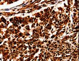 Immunohistochemistry of paraffin-embedded Human lung cancer using BOLL Polyclonal Antibody at dilution of 1:10.