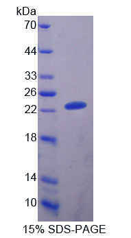 A1BG Protein - Recombinant  Alpha-1-B-Glycoprotein By SDS-PAGE