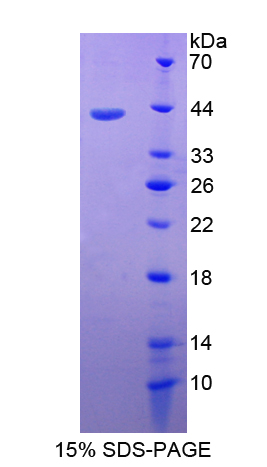 CD3D Protein - Recombinant  Cluster Of Differentiation 3d By SDS-PAGE