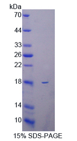 Collagen X Protein - Recombinant  Collagen Type X By SDS-PAGE