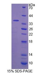F5 / Factor Va Protein - Recombinant  Coagulation Factor V By SDS-PAGE