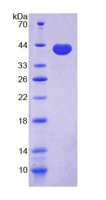 GAL4 / Galectin 4 Protein - Recombinant Galectin 4 By SDS-PAGE