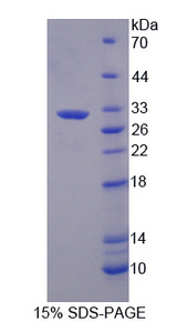 GC1qR / C1QBP Protein - Recombinant Hyaluronan Binding Protein 1 By SDS-PAGE