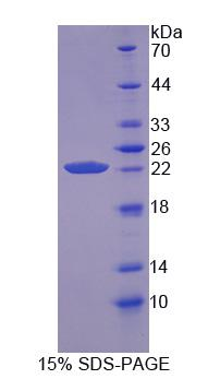 PPIB / Cyclophilin B Protein - Recombinant  Cyclophilin B By SDS-PAGE