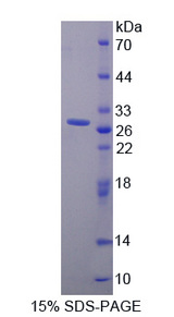 PRLR / Prolactin Receptor Protein - Recombinant  Prolactin Receptor By SDS-PAGE